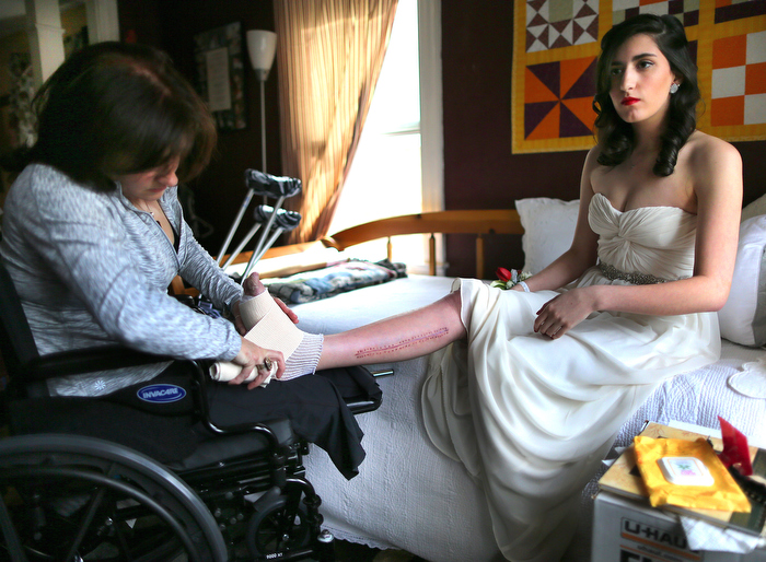 Lowell-5/28/13- Sydney Corcoran a victim of the marathon bombing gets ready for her Lowell High School senior prom as her mother Celeste wraps her foot that was injured in the bombing. A chunk of her foot was damaged in the bombing that also ripped into her femoral artery. Celeste lost both her legs in the bombing. It was Sydney's dream to go to her prom.