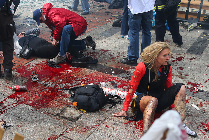 Boston-4/15/13- Kevin Corcoran (left) from Lowell puts his belt on the leg of his wife Celeste to stop the bleeding, as Nicole Gross (rt)  from Charlotte, N.C. sits in shock  on the sidewalk at the site of the first Boston Marathon bombing near the finish line on the Boylston Street.
