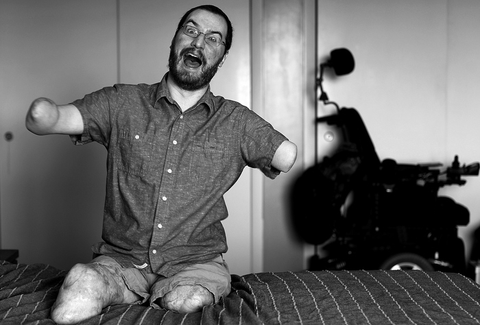 "SIT DOWN COMEDIAN: Will Lautzenheiser was an artist, writer and professor when his body was devoured by a flesh-eating bacteria. He lost all four limbs, but not his sense of humor. He became a ""sit down"" comic, performing around the US. Before he received a rare two-arm transplant, he posed for a photographer."