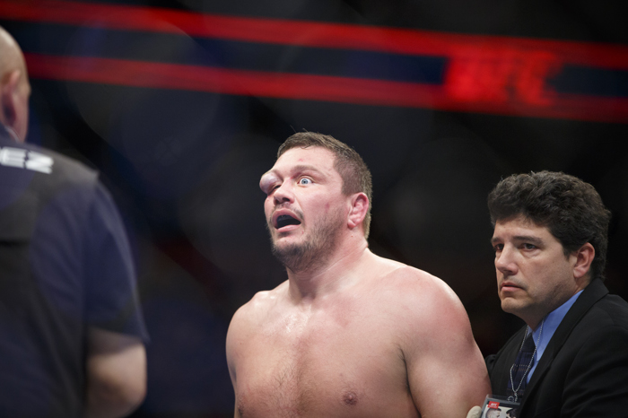 1/17/2016 - Boston, MA - TD Garden - UFC fighter Matt Mitrione, reeled from a nasty blow to the eye that left him temporarily blinded and disfigured. His opponent, Travis Browne, won the match. They faced off during UFC Fight Night: Dillashaw vs. Cruz on Sunday evening, January 17, 2015 at the TD Garden in Boston, MA.